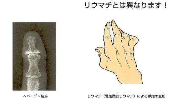 手指の関節の痛みと腫れ