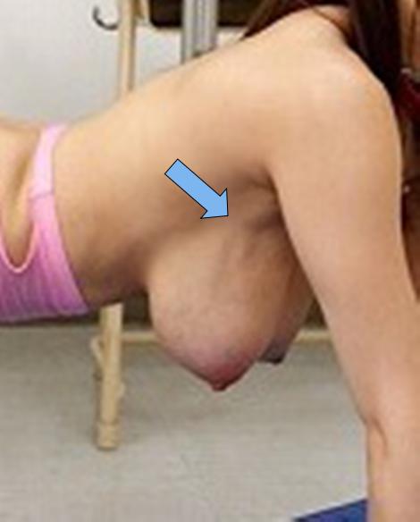 f:id:pseudo-boobs:20151206210409p:plain
