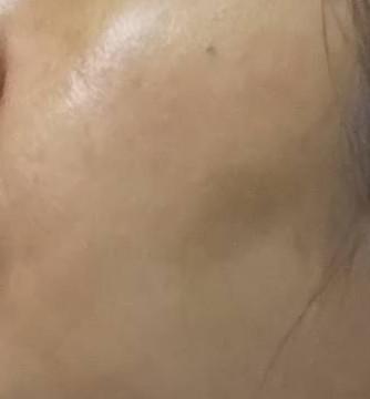 3日後の肌