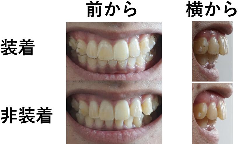 f:id:qusabi:20160529140450j:plain