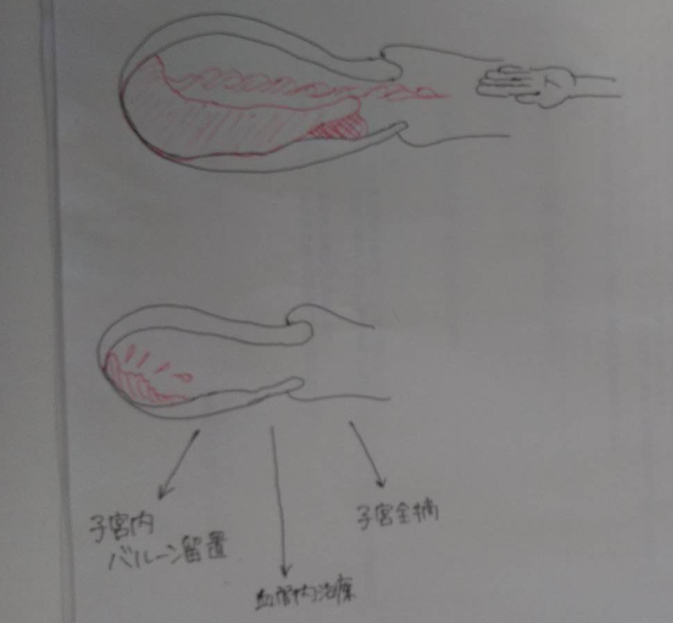 f:id:rakuraku0308:20190519010029p:plain
