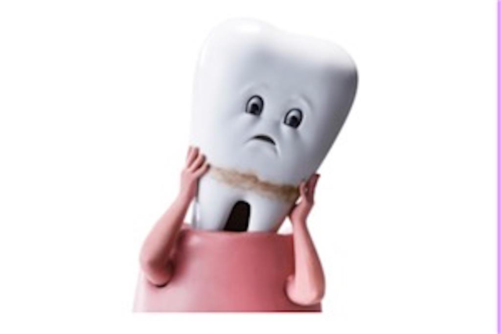 歯周病 歯が抜ける