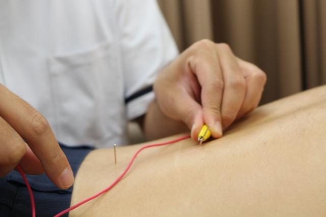 脚へ電気治療