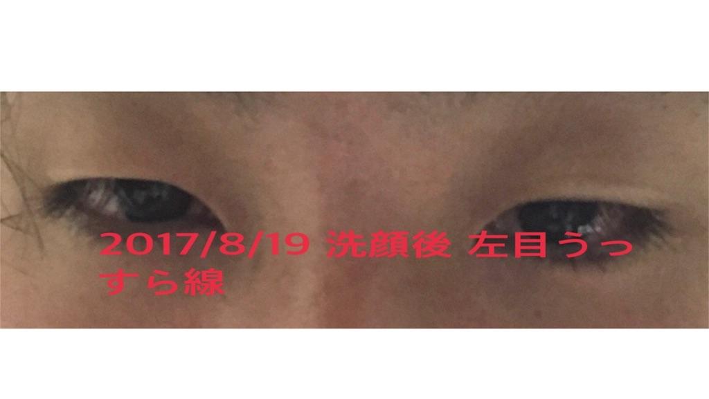 f:id:renji_tiger:20170902181543j:plain