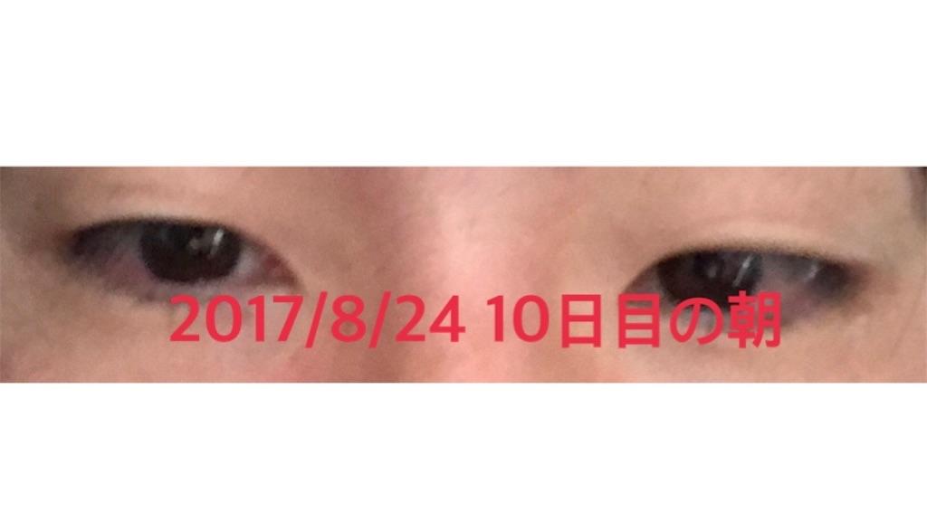 f:id:renji_tiger:20170902182044j:plain