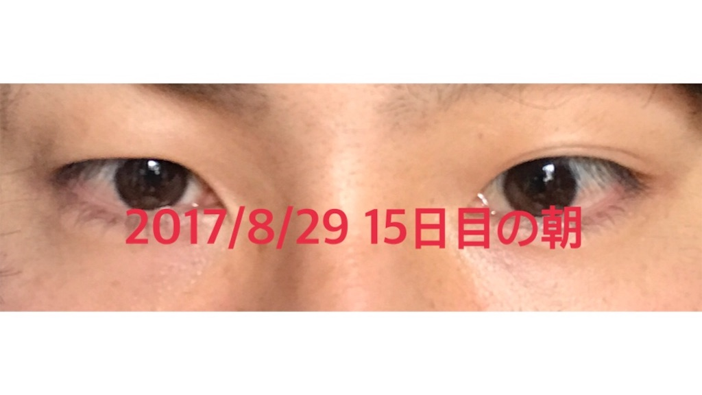 f:id:renji_tiger:20170902183010j:plain