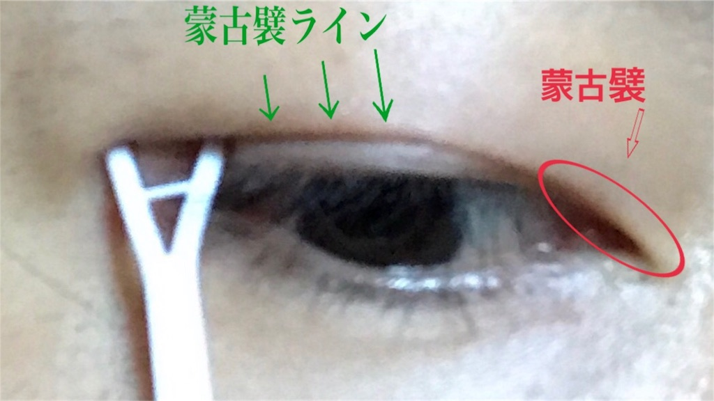 f:id:renji_tiger:20171103095121j:image