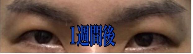 f:id:renji_tiger:20181027012357j:image