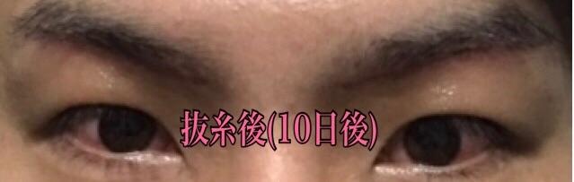f:id:renji_tiger:20181027012407j:image