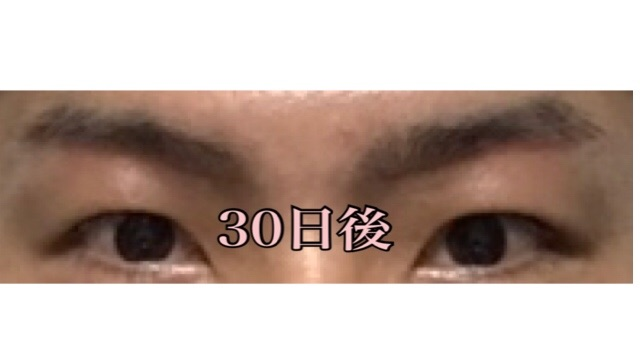 f:id:renji_tiger:20181027013637j:image