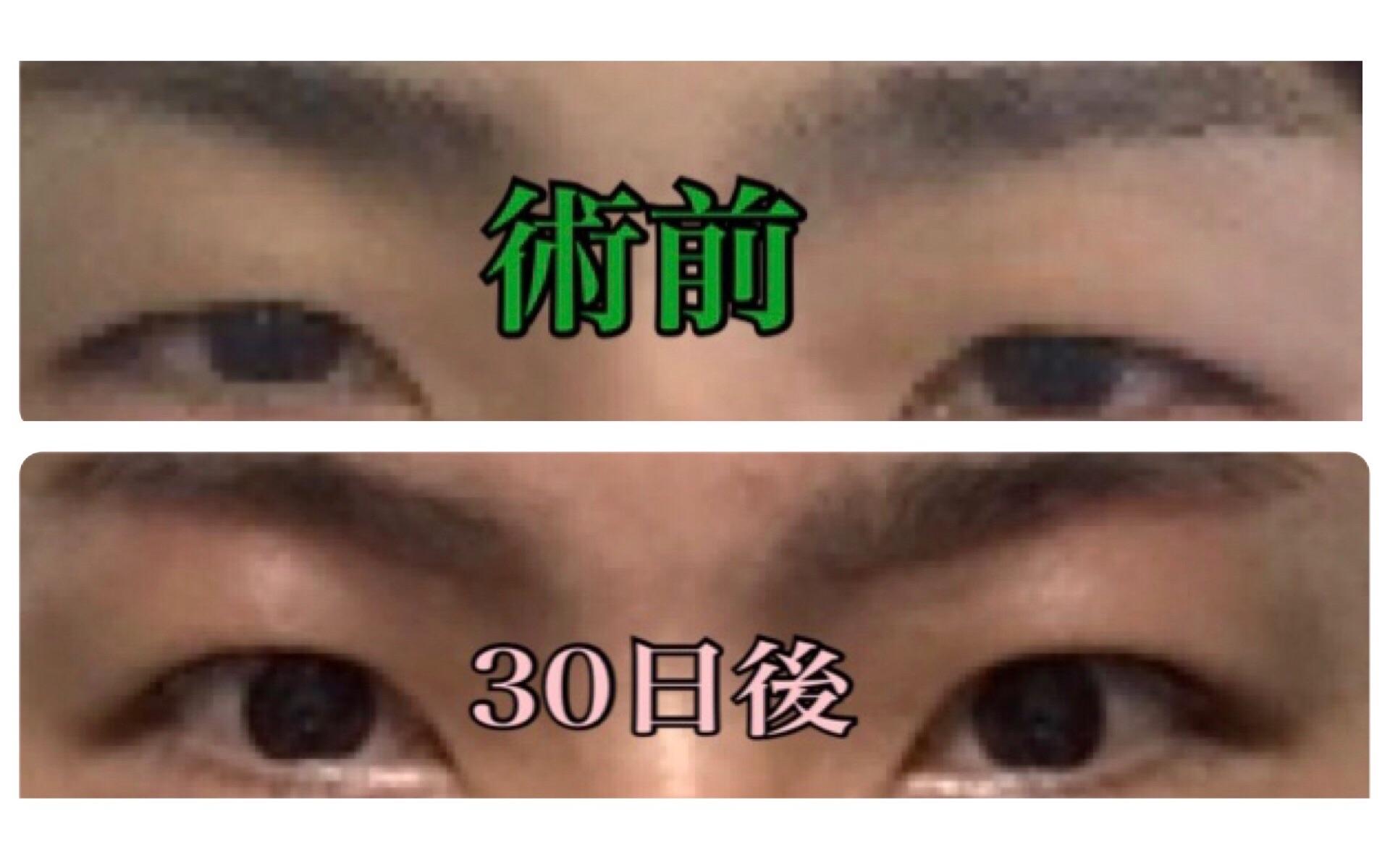 f:id:renji_tiger:20181117234732j:image
