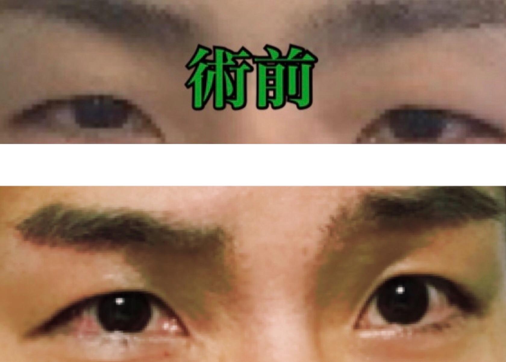 f:id:renji_tiger:20181118000331j:plain