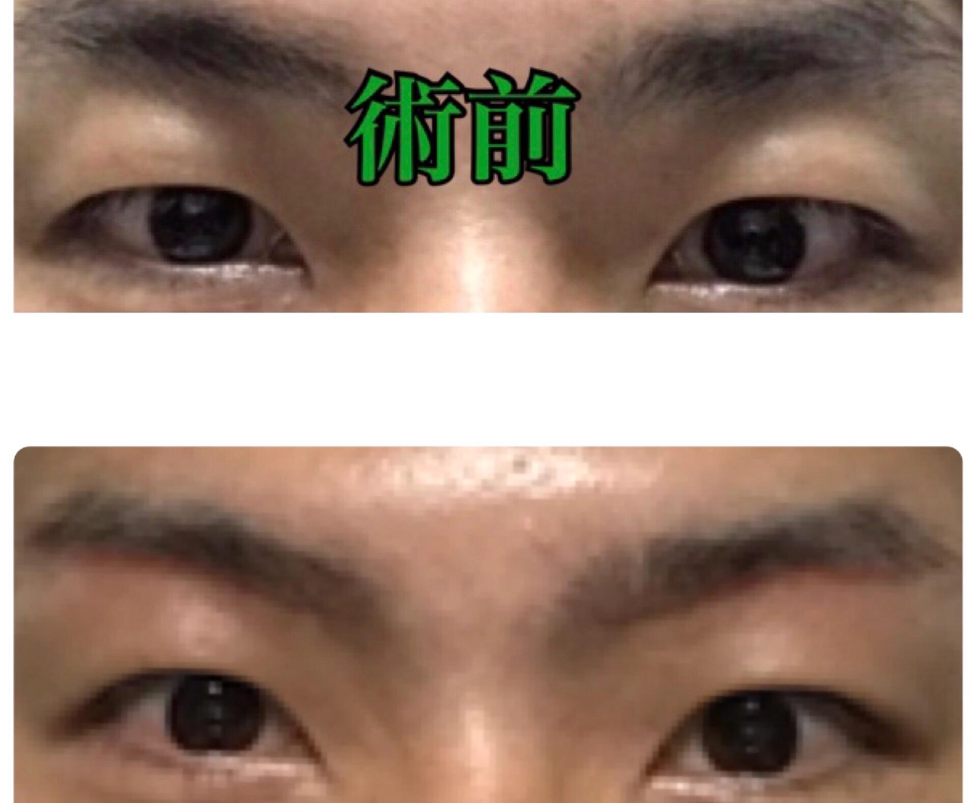 f:id:renji_tiger:20181119000255j:image