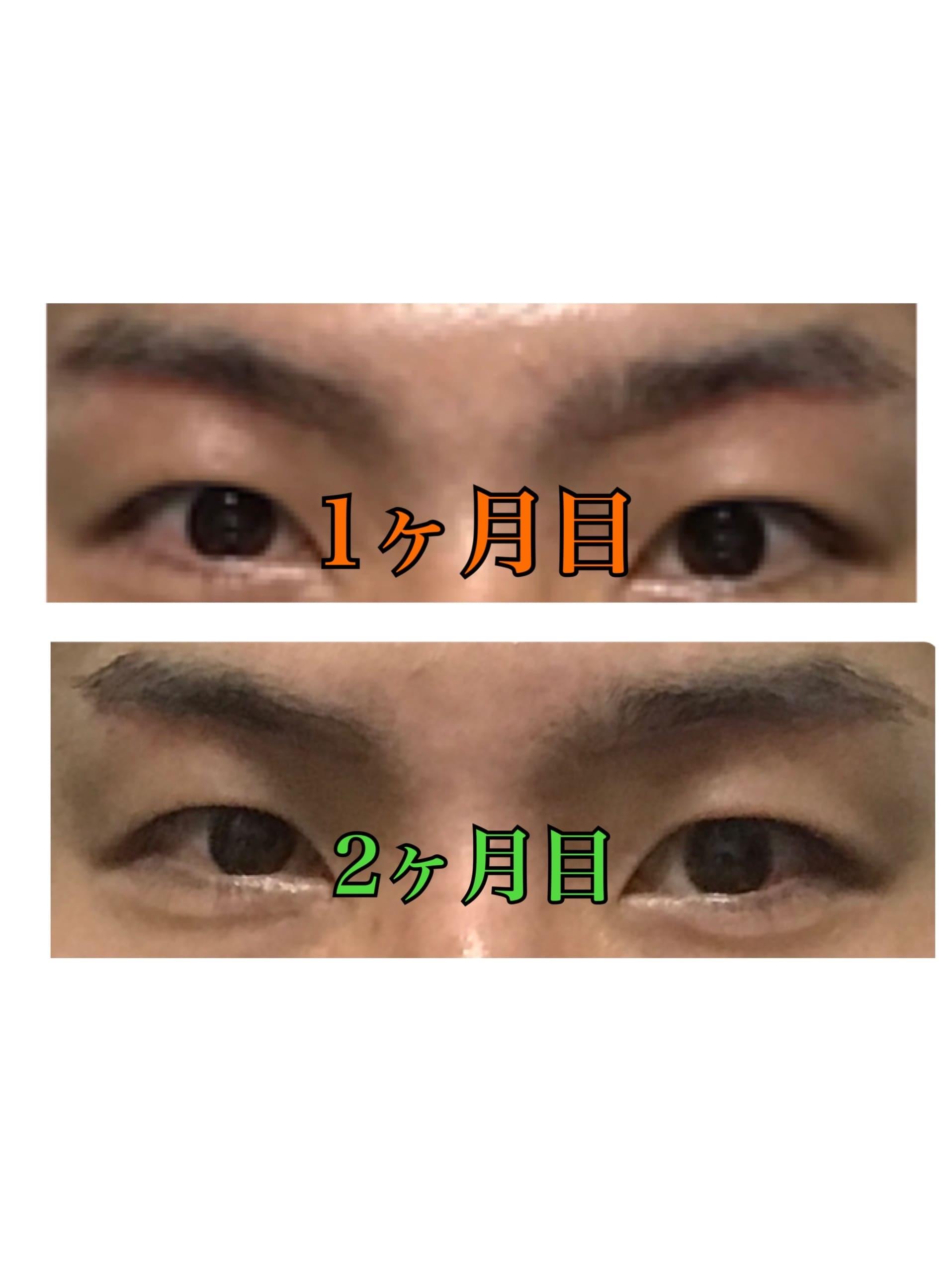 f:id:renji_tiger:20181212222840j:image