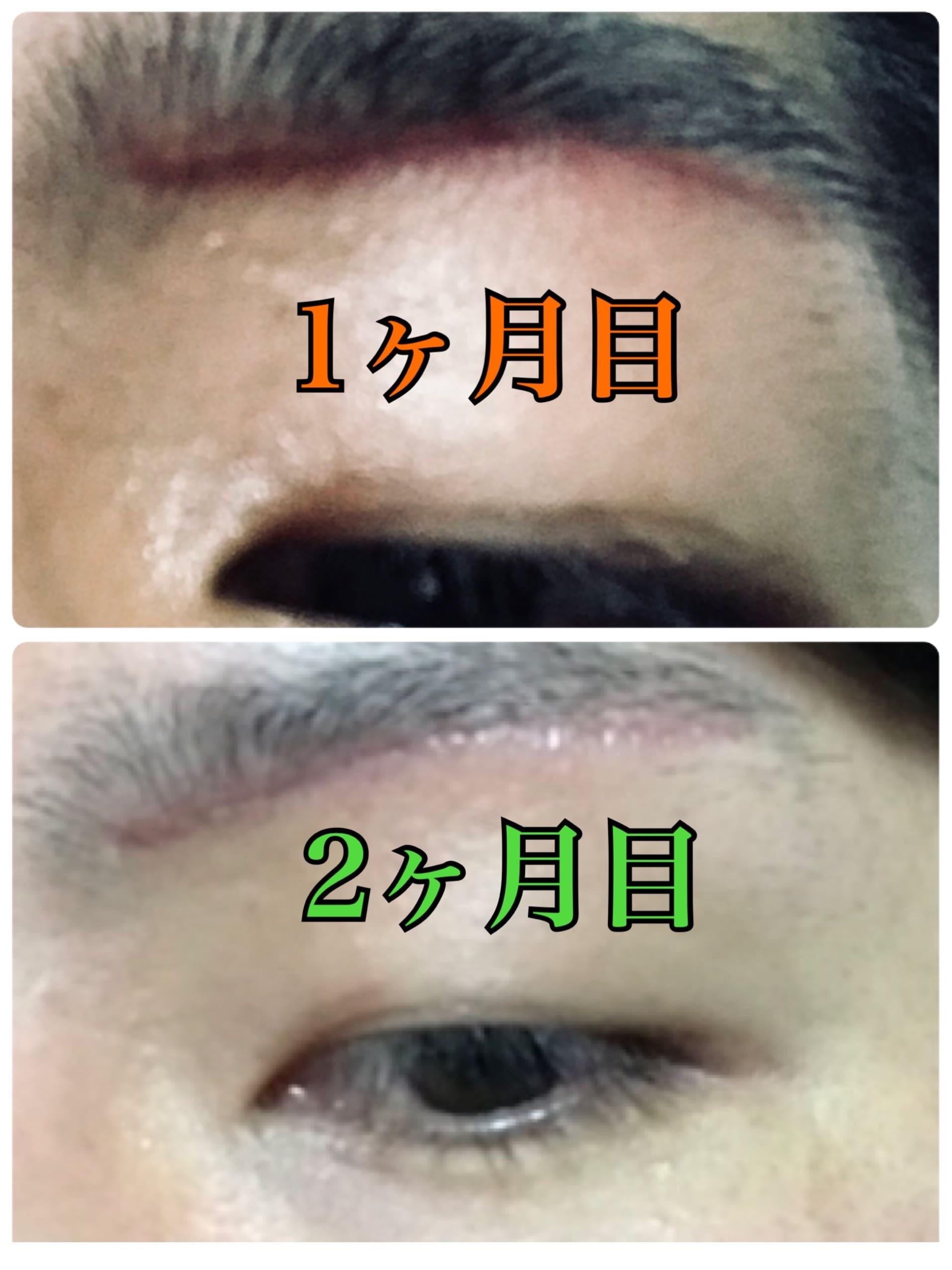 f:id:renji_tiger:20181212222851j:image