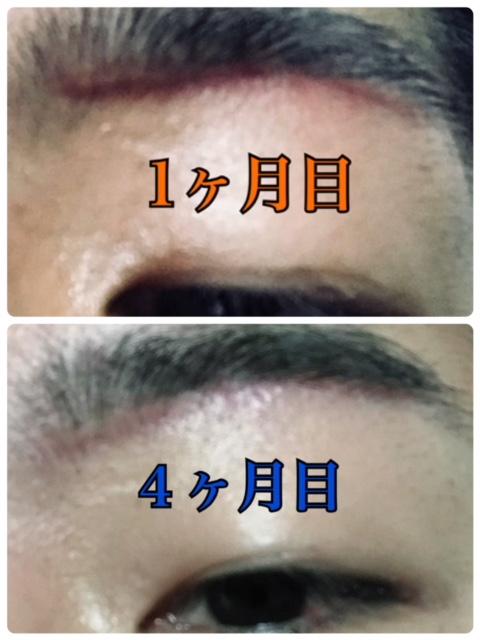 f:id:renji_tiger:20190202230109j:plain