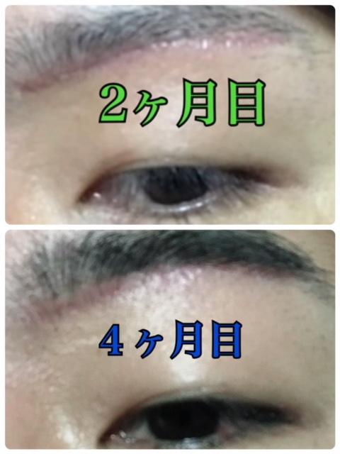 f:id:renji_tiger:20190202230130j:plain