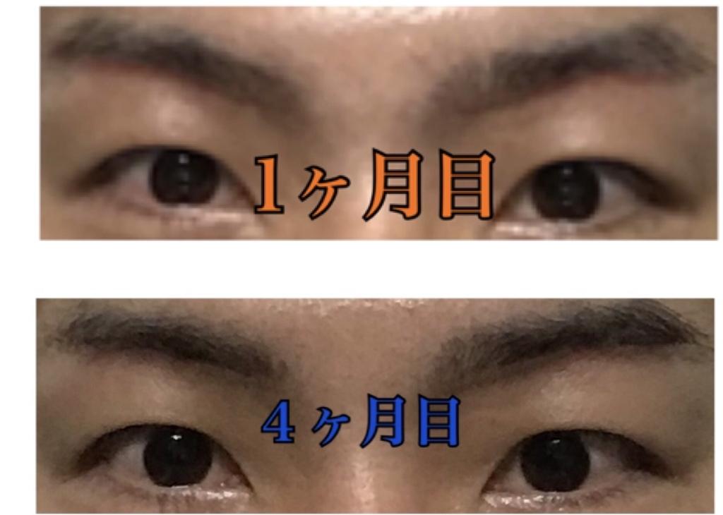 f:id:renji_tiger:20190202230153j:plain