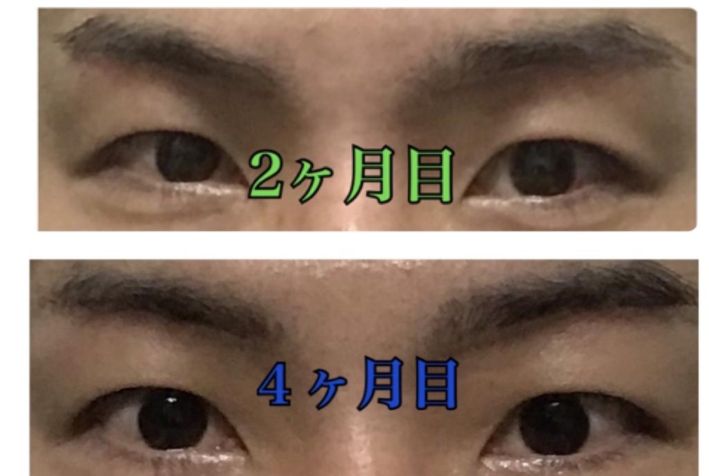 f:id:renji_tiger:20190202230215j:plain