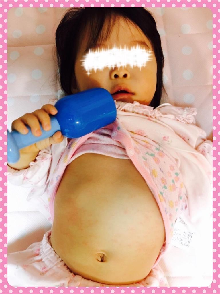 f:id:ribon-takara:20171021222039j:image