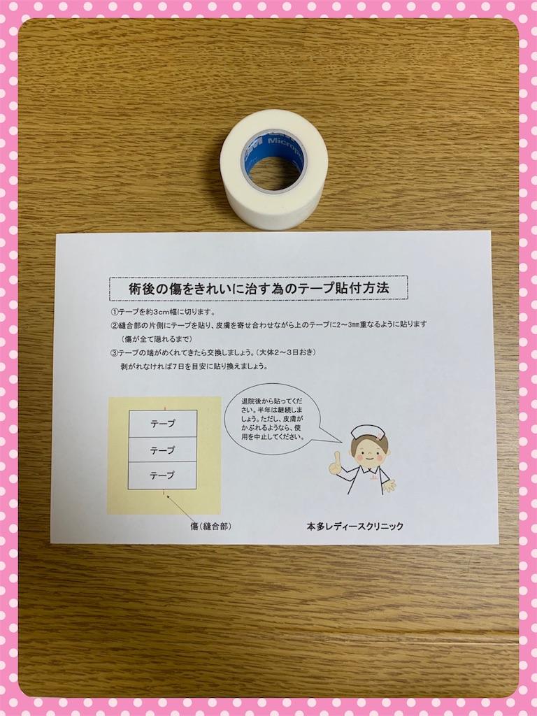 f:id:ribon-takara:20190127213512j:image
