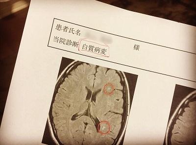 まさかの誤診!脳梗塞じゃなくて「白質病変」