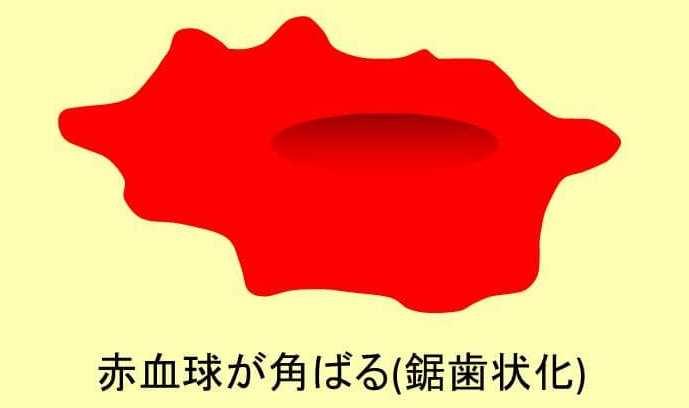 赤血球の鋸歯状化のイラスト