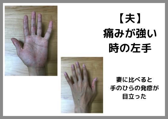 手足口病に大人が感染。高熱・喉の痛み・発疹に苦しんだ記録。赤い斑点の写真あり