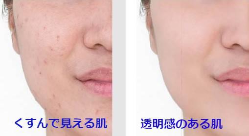 くすんで見える肌と透明感のある肌の写真
