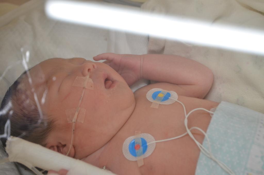 奇形 胎児 腫 用