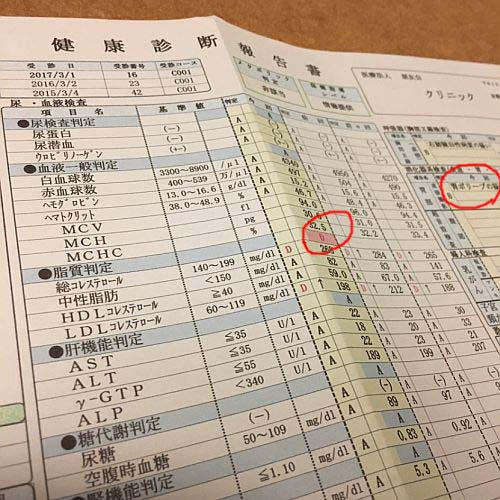 f:id:rjmatsumura:20170312004126j:plain