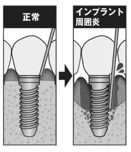 f:id:rjmatsumura:20180605190108j:plain