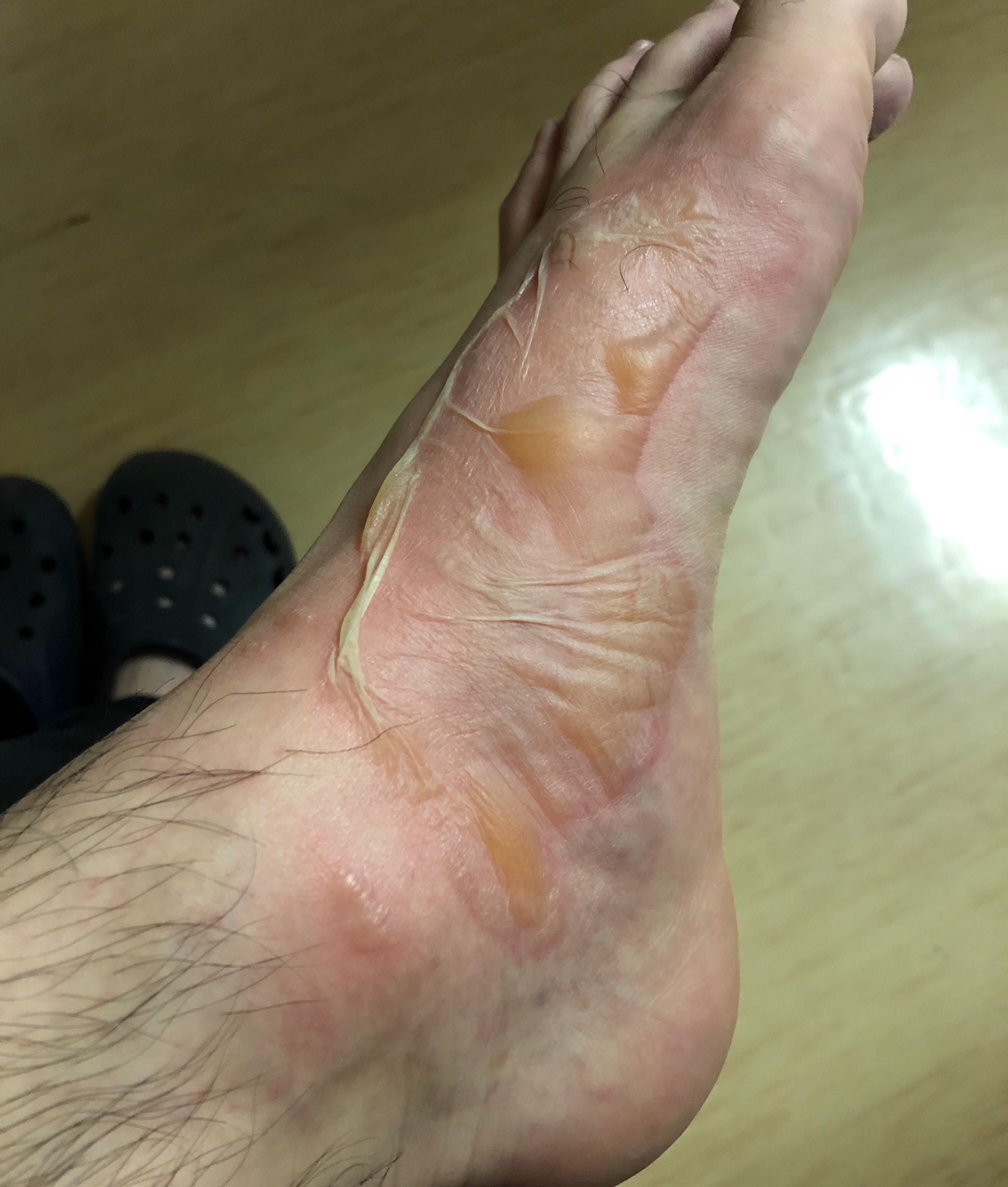 足の火傷当日