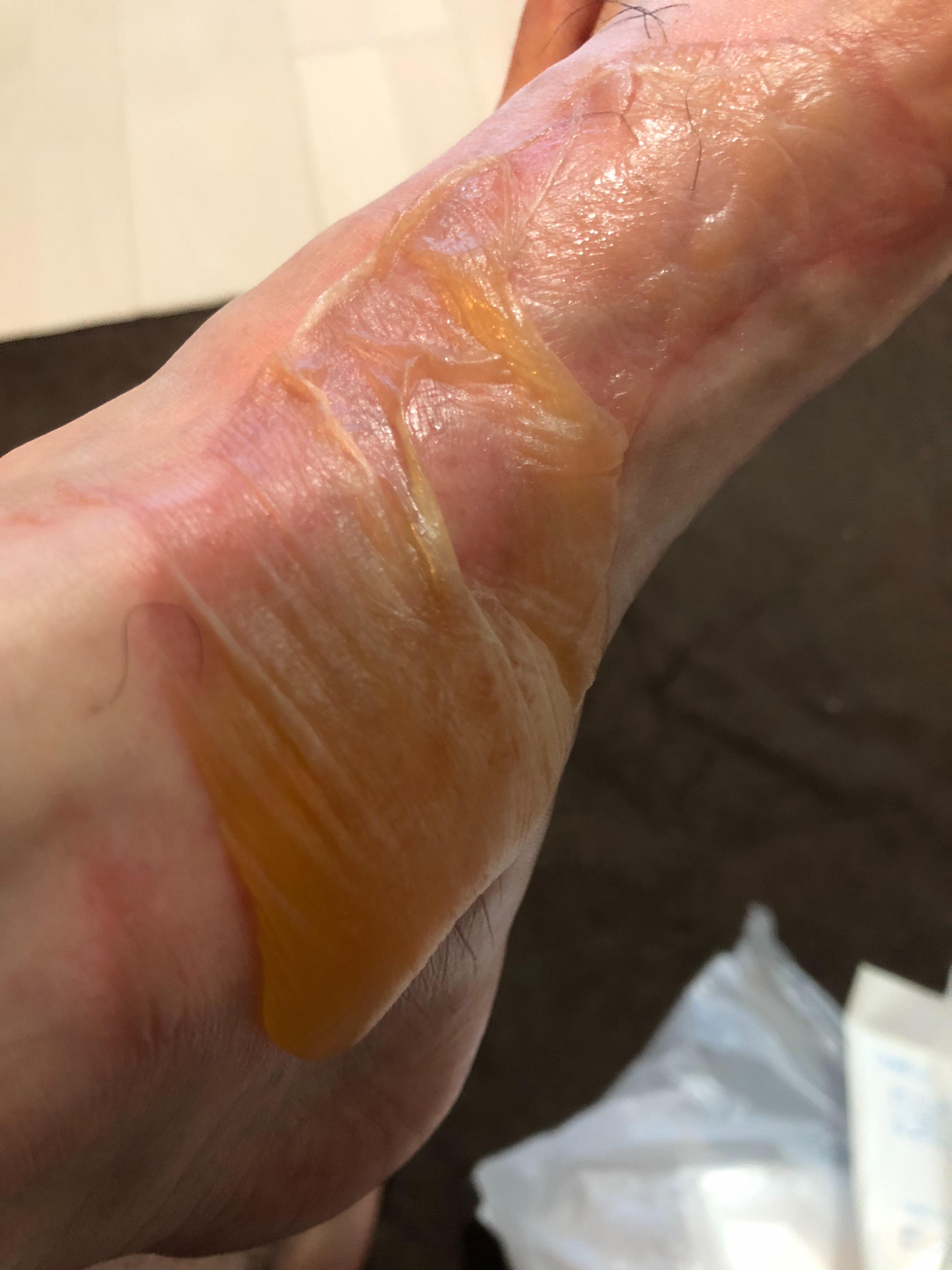 足の火傷2日目