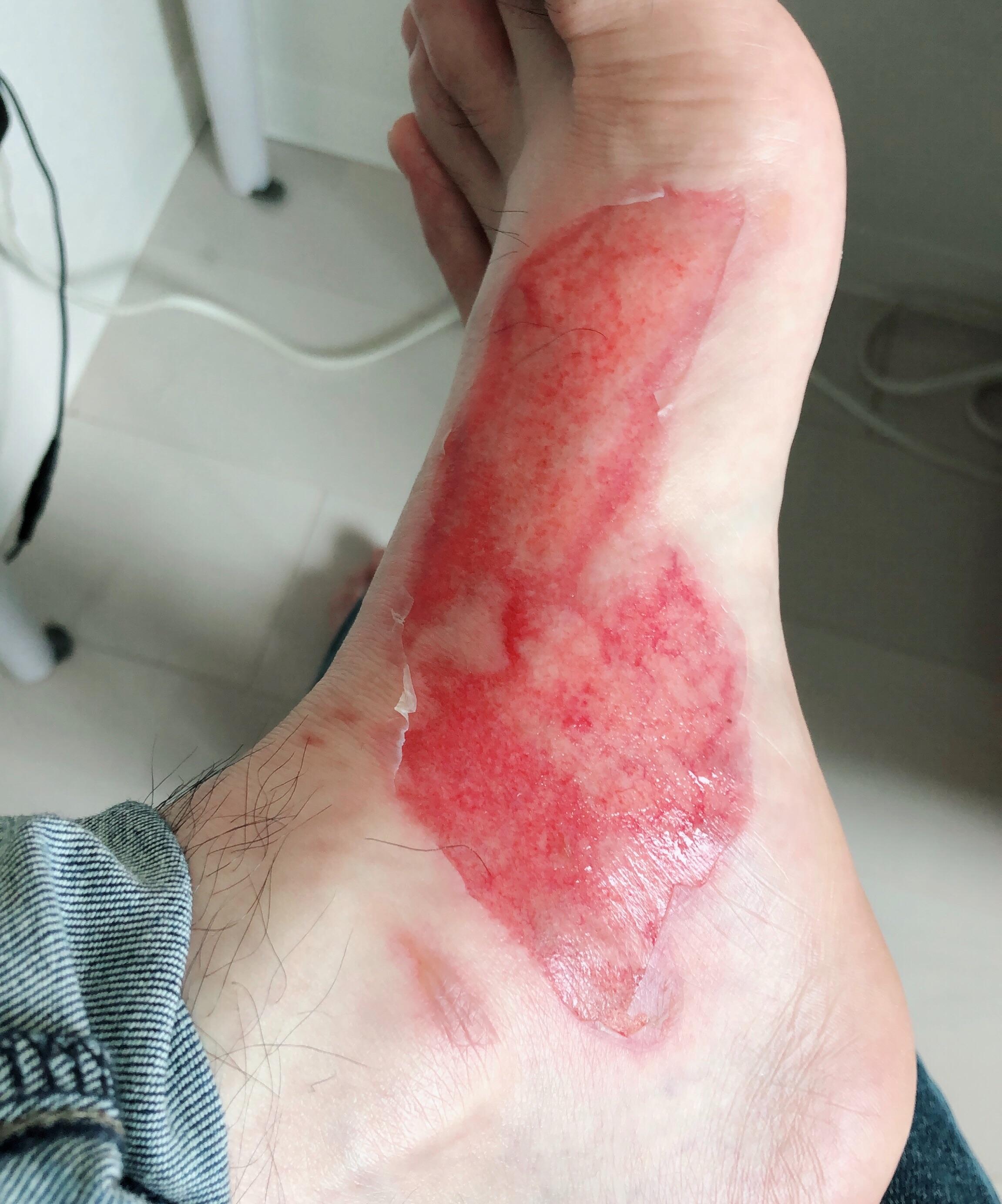 足の火傷4日目