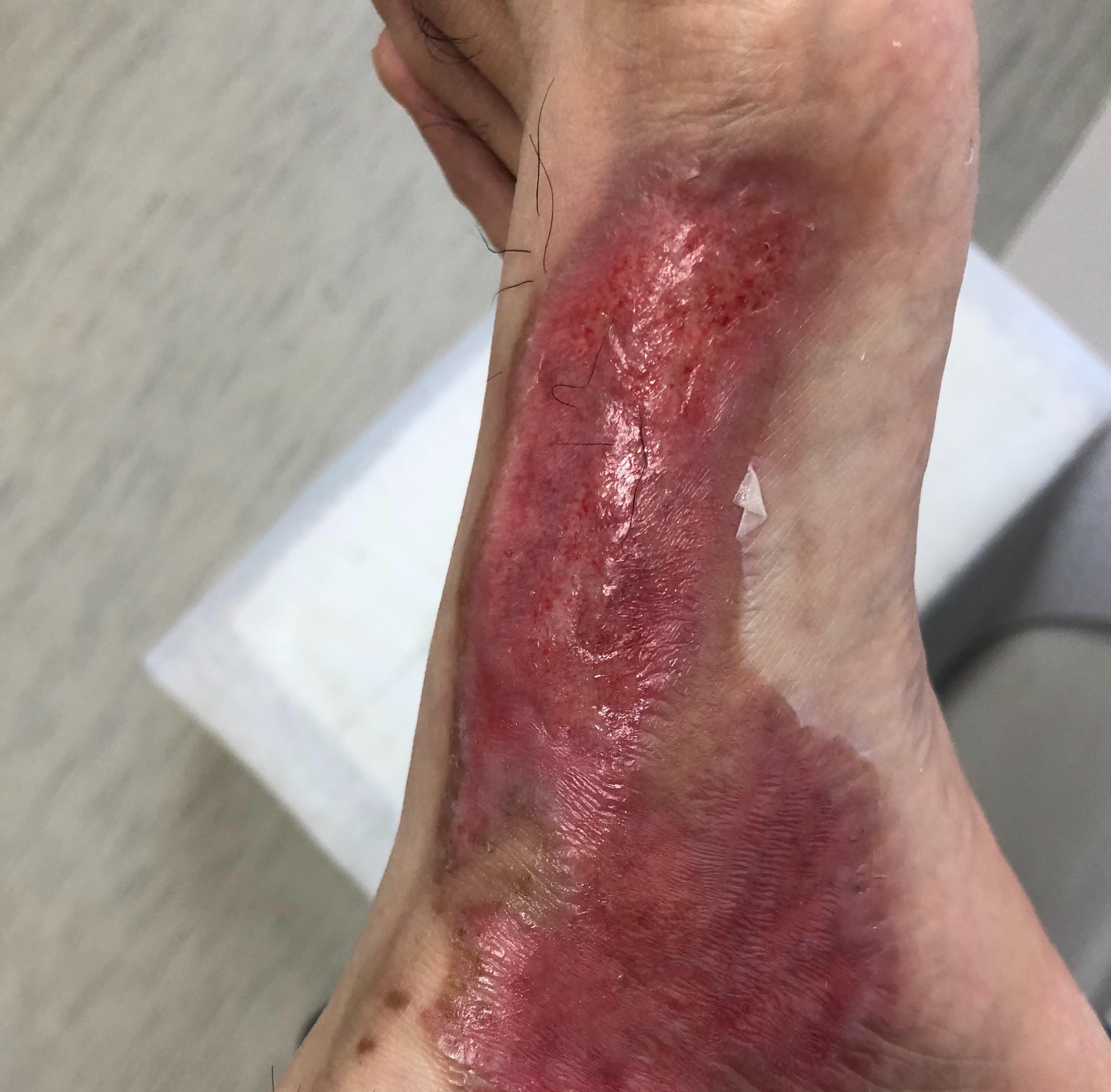 足の火傷11日目