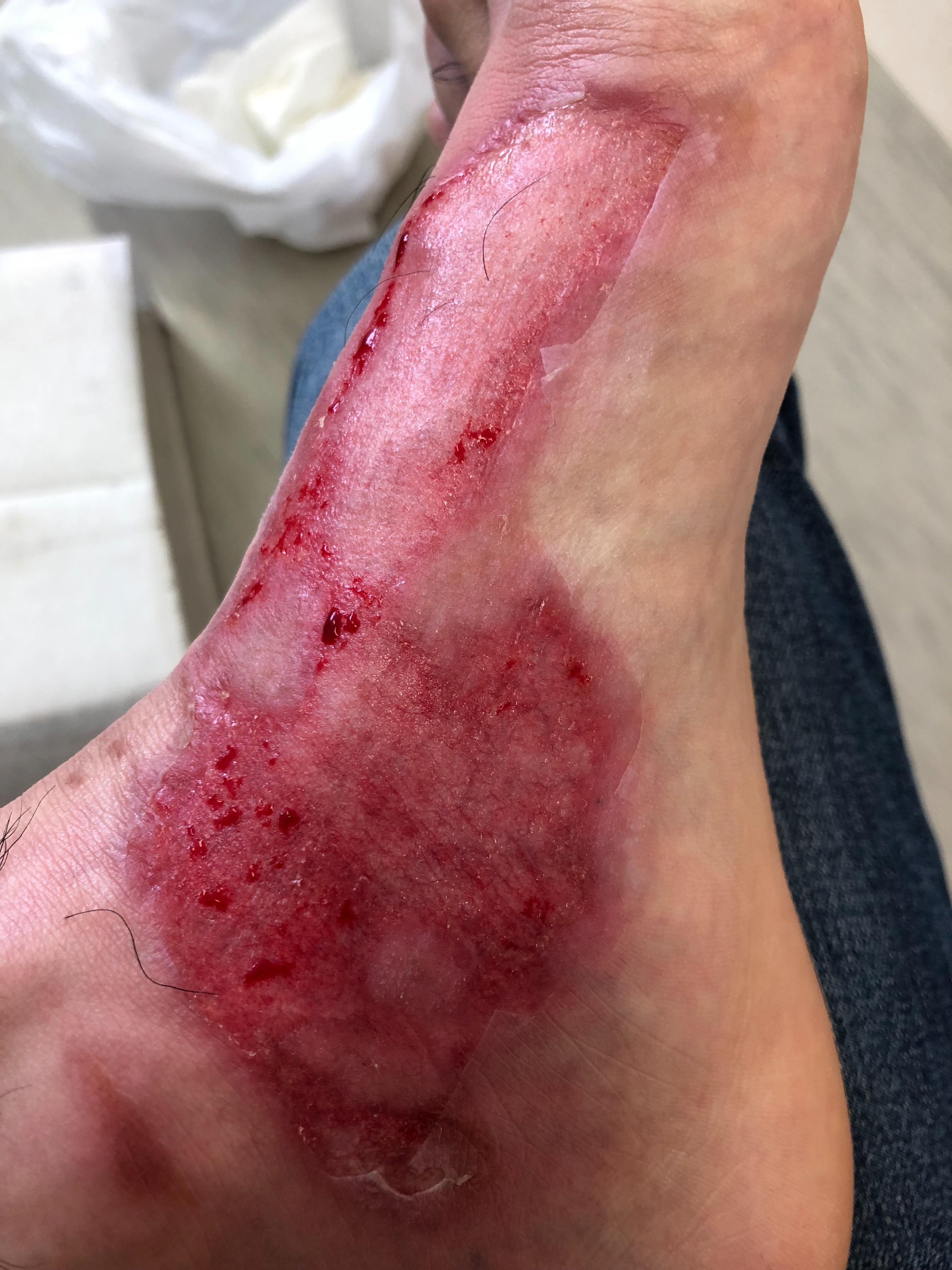 足の火傷7日目