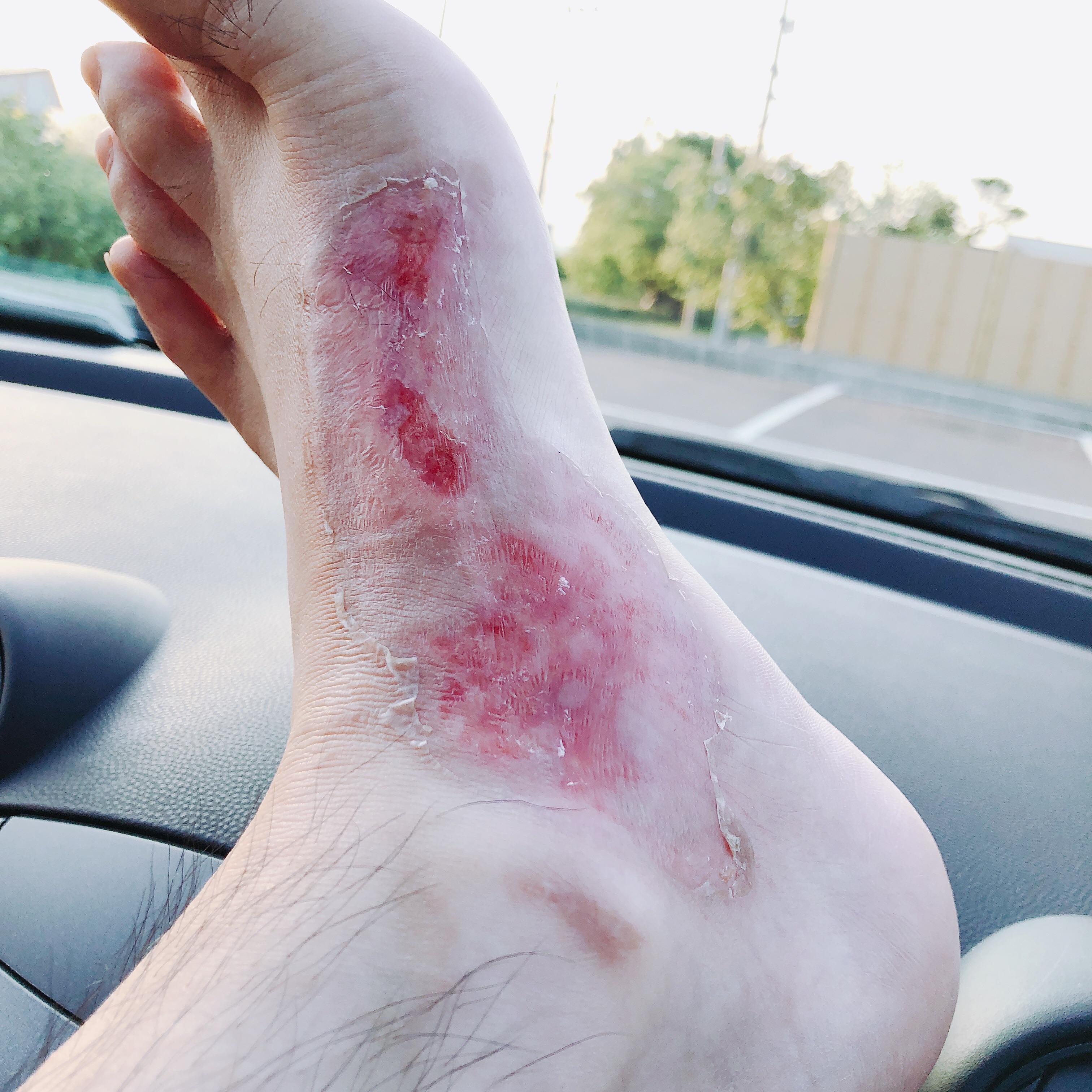足の火傷12日目