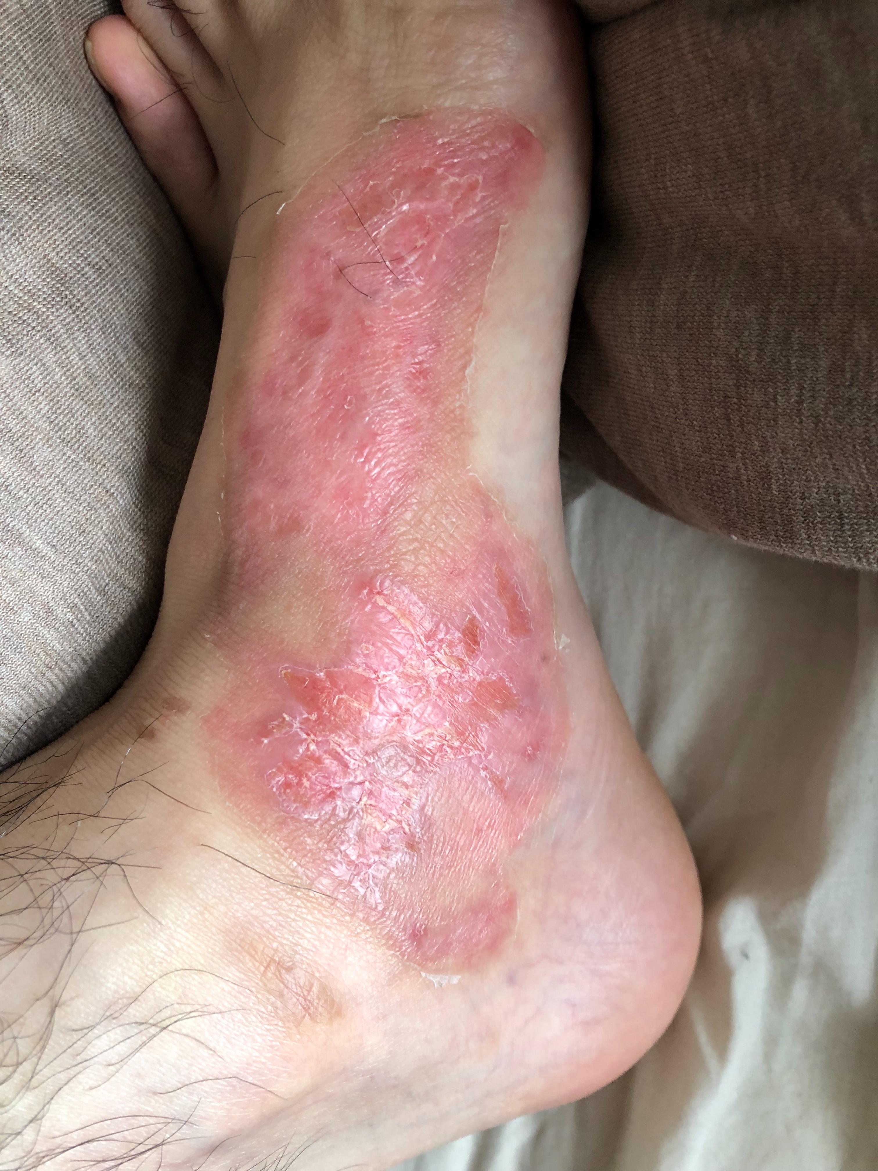 足の火傷15日目