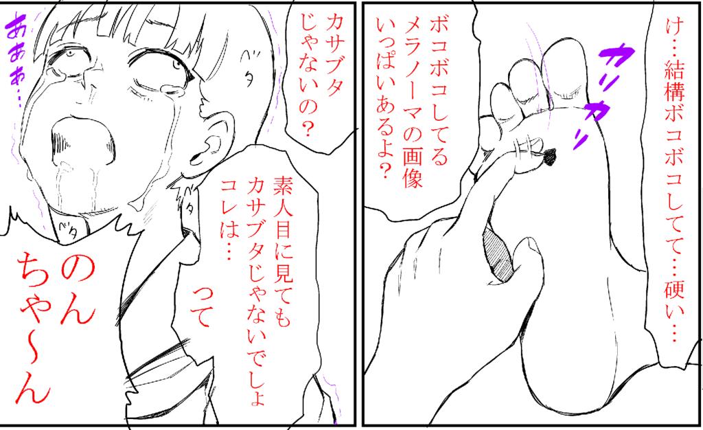 f:id:ryokuji:20180318075706p:plain