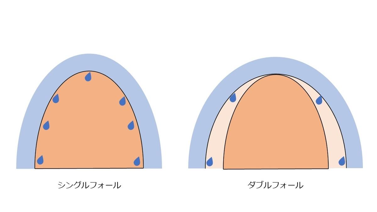 f:id:ryou-m:20200112140315j:plain