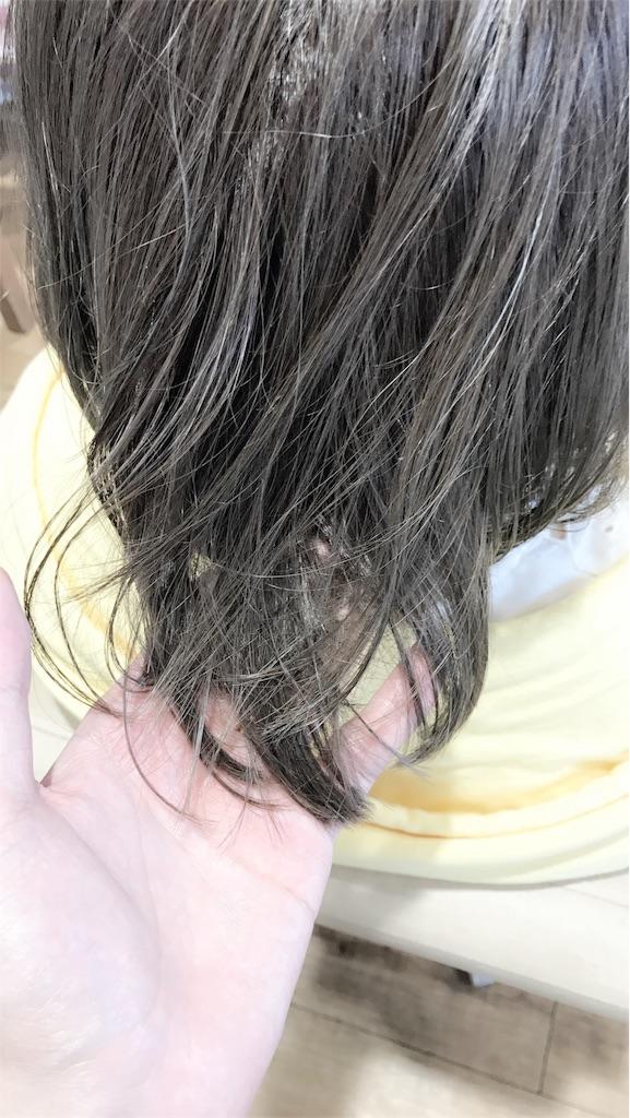 f:id:ryoumeiyamasaki:20180707203147j:image