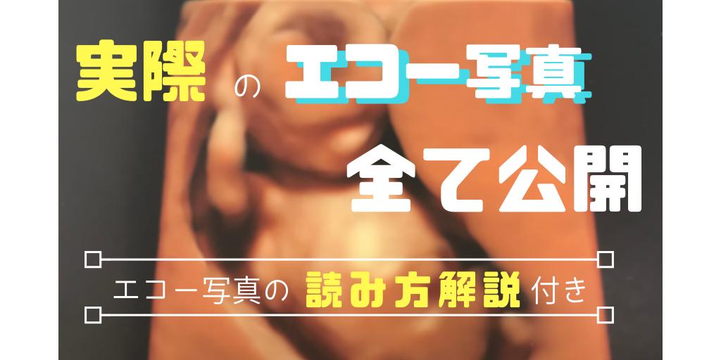 f:id:sabo-san:20181007122726p:plain