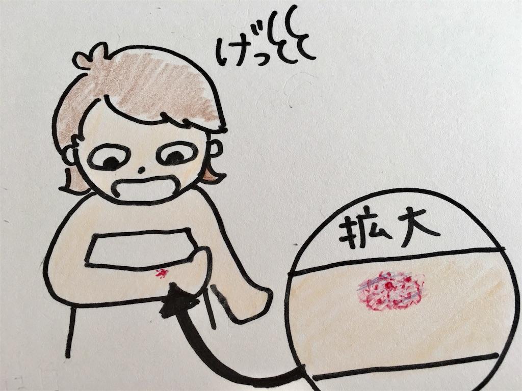 f:id:sachikichi31:20170216143158j:image