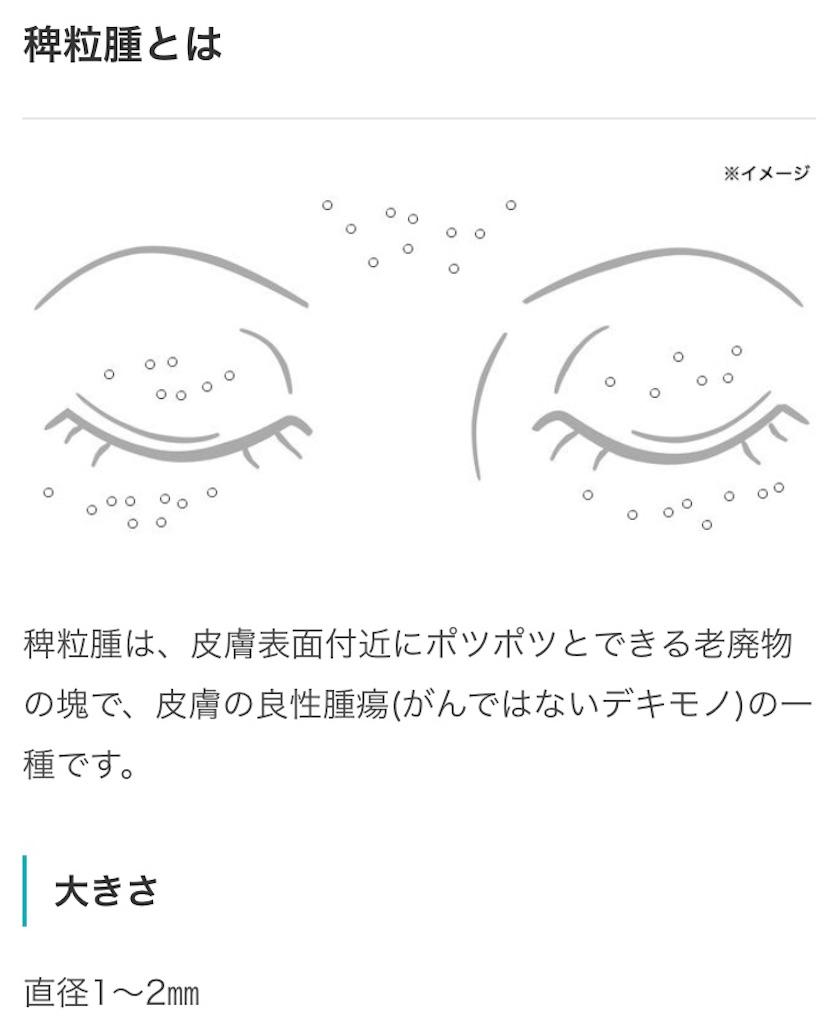 f:id:sachimacaron:20180502102421j:image