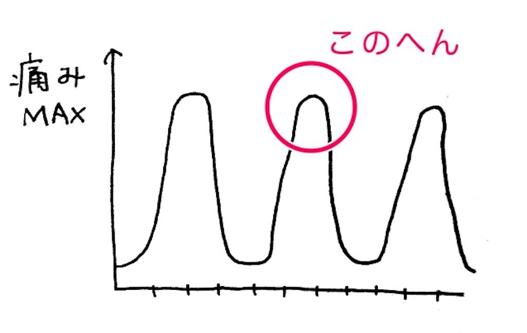 陣痛の痛みレベルを表すグラフ
