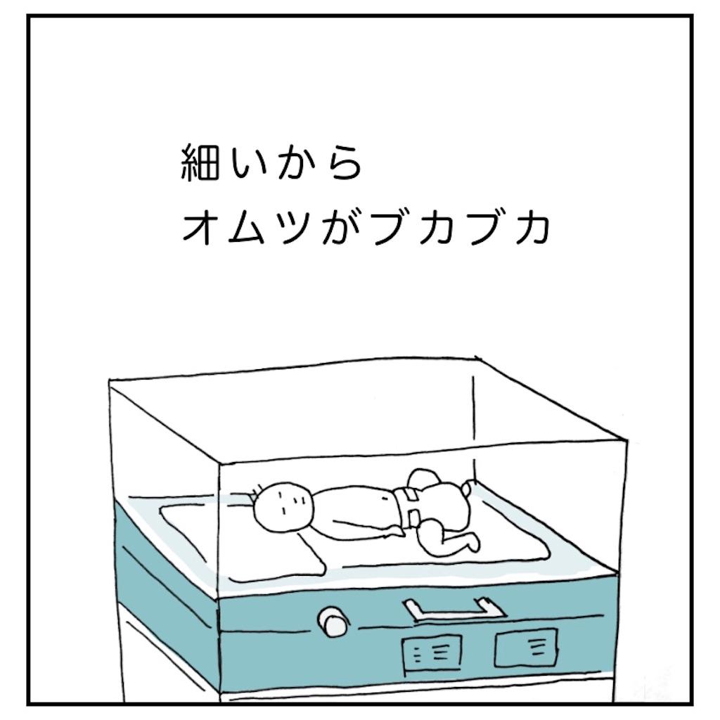 保育器に入る新生児