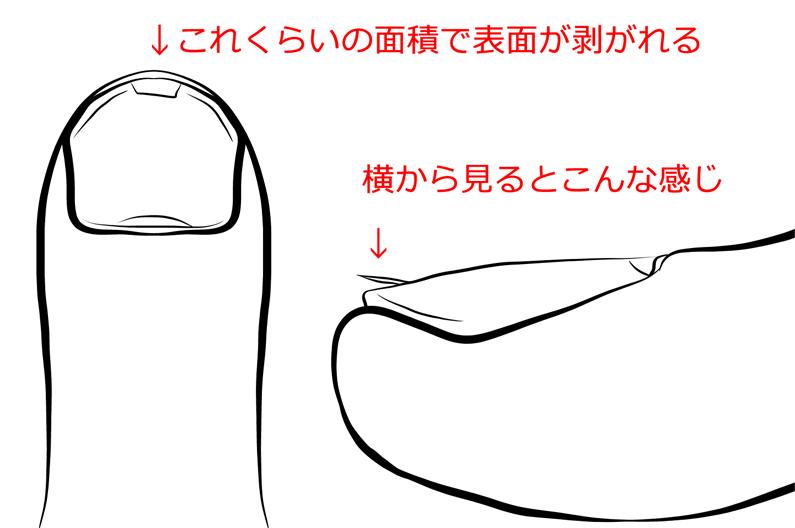 f:id:sakatsu_kana:20180305080339j:plain