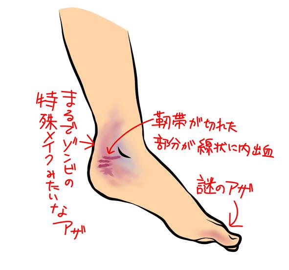 f:id:sakatsu_kana:20190301155354j:plain