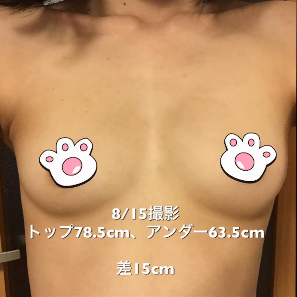 f:id:sakura_biyou:20170823141234p:image